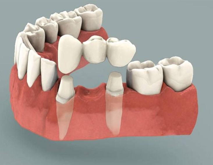dental bridge services in Dedham