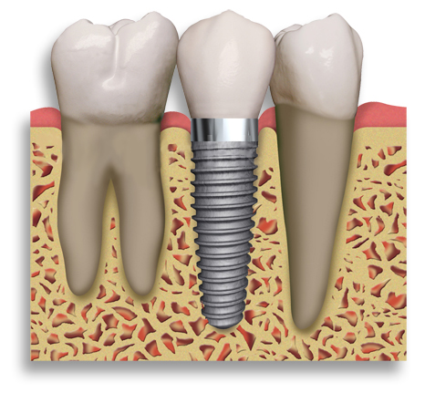 Dental Implants in Dedham